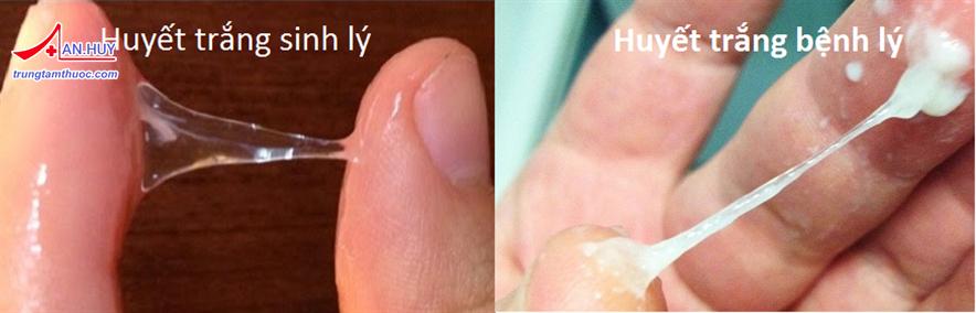 Nhiếm nấm âm đạo: chẩn đoán và điều trị