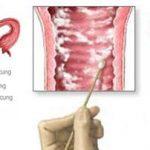 Triệu chứng, nguyên nhân và cách phòng ngừa viêm âm đạo